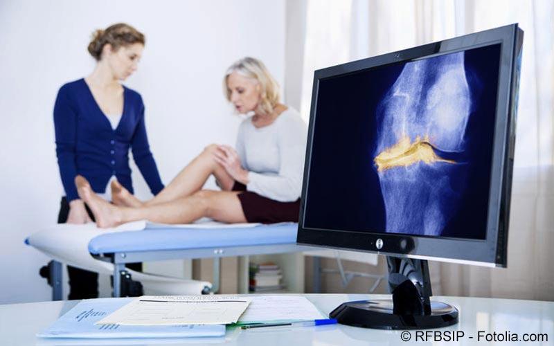 Arthrose Untersuchung Arzt