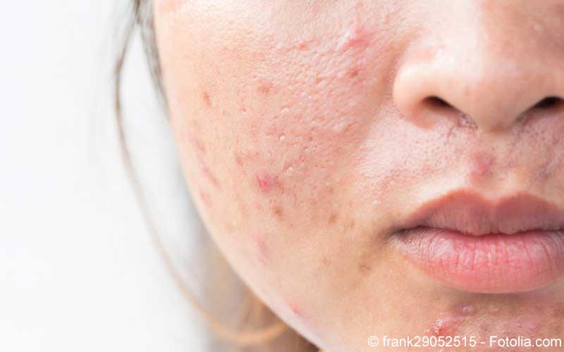 Hautausschlag Frau
